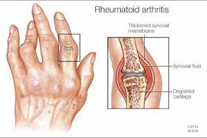 Arthritis-Profile