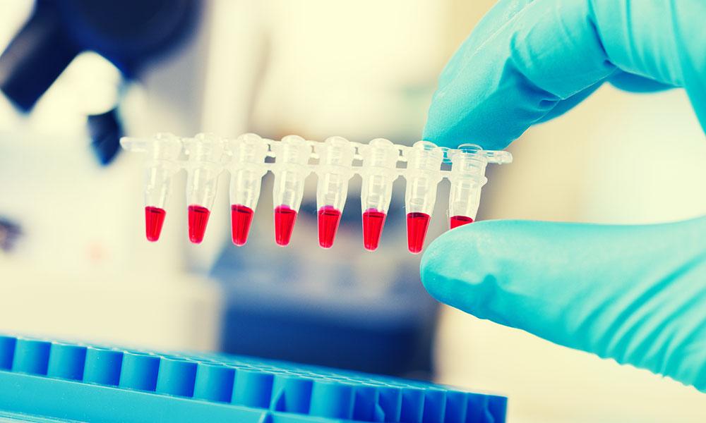 Molecular-Biology-(PCR)